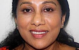profile photo of Dr Thustika De Mel Doctors Medicross Coomera