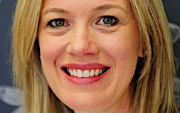 profile photo of Dr Lyndall Gourlay Dentists Eve Dental