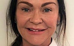 profile photo of Dr Nicola McBlain Dentists 1300 Smiles - Mackay
